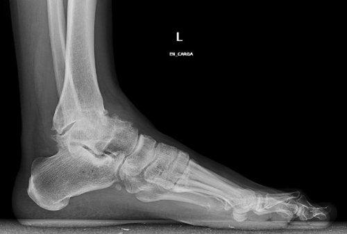 발목 골관절염 치료법