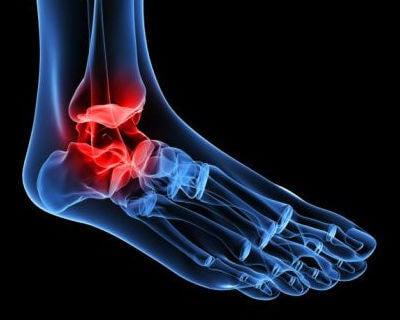 발목 골관절염은 어떻게 발생할까