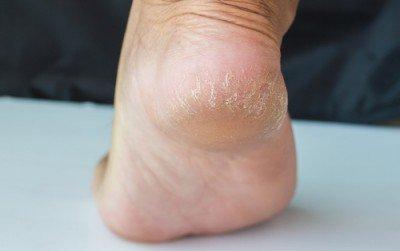건조하고 갈라진 발뒤꿈치를 관리하는 6가지 방법