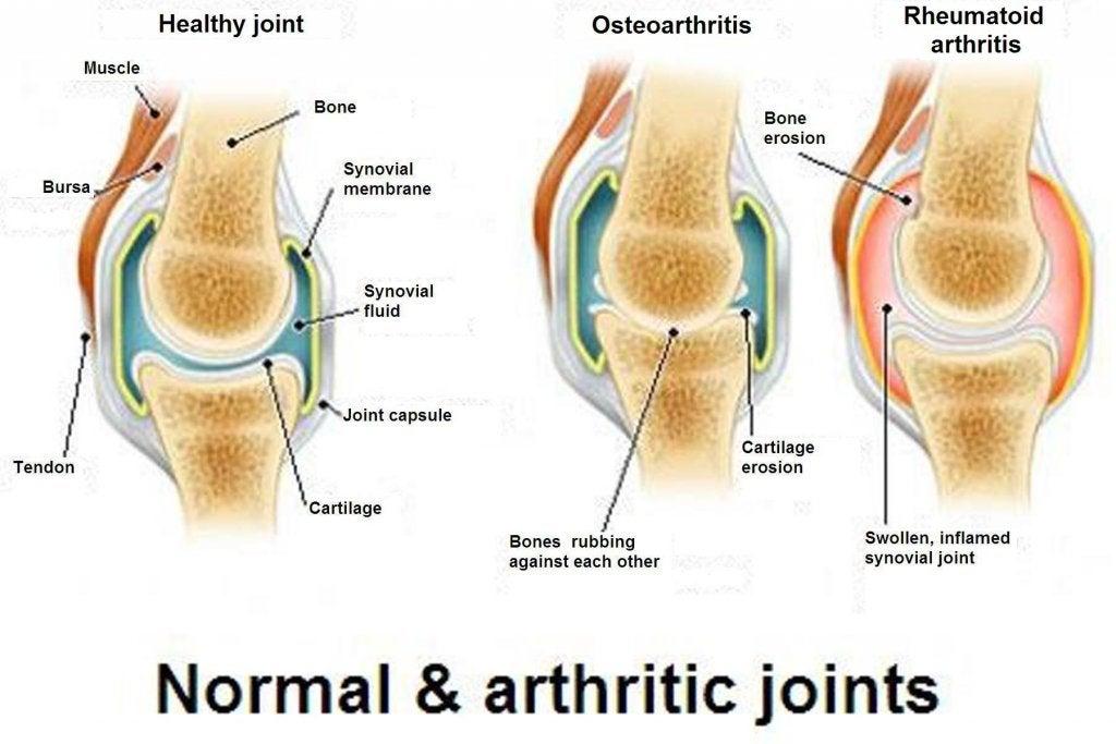 관절염, 골관절염 및 골다골증의 차이점