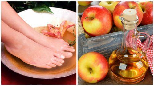 식초에 발을 담그는 것의 6가지 혜택
