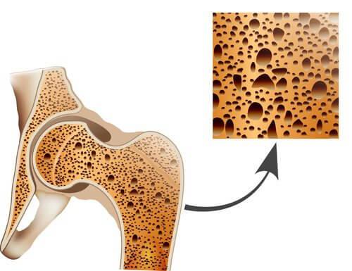 Diferencias entre artritis, osteoartritis y osteoporosis
