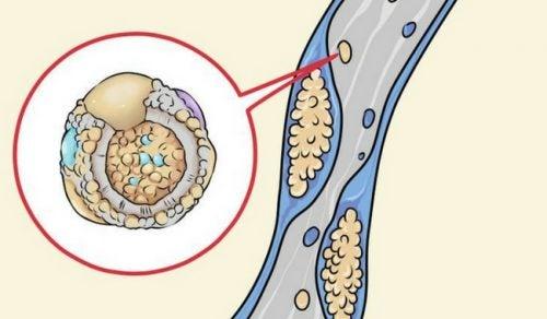 콜레스테롤을 낮추는 6가지 식습관