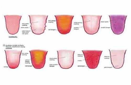 혀가 건강에 대해서 알려주는 9가지