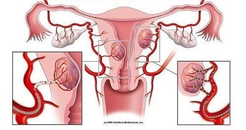 자궁근종에 대한 경고 징후 7가지