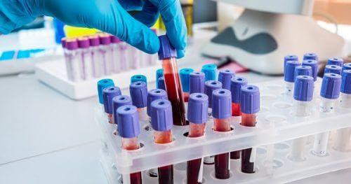혈액 검사