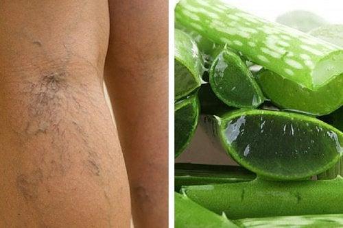 다리의 혈액순환을 개선하는 방법 알로에베라