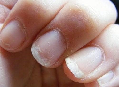 손톱 약화 혈액 순환 장애를 나타내는 신호