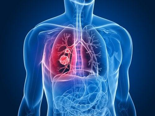 폐암 환자의 항암 치료 부작용을 완화하는 새로운 약
