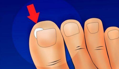 내성 손발톱을 예방하는 방법