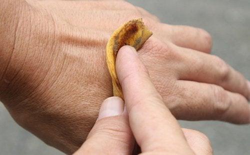 바나나 껍질로 사마귀 치료하기