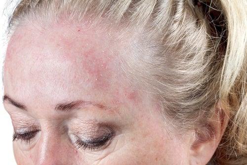 젖은 머리로 잠을 자면 나타나는 8가지 건강상 문제