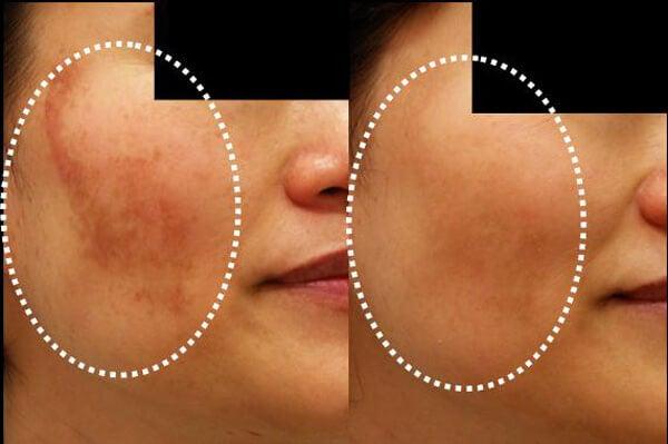 피부 변색을 줄이는 5가지 팩