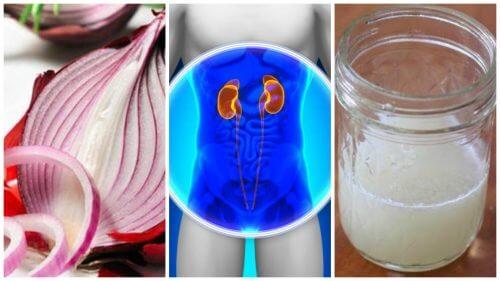 신장을 정화하는 양파 치료제