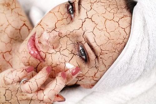건조한 피부를 촉촉하게 만드는 방법
