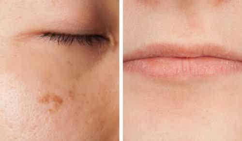 얼굴에 나타나는 비타민 결핍 신호 5가지