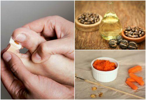 손톱 거스러미를 제거하는 8가지 천연 요법