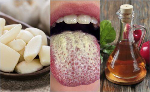 칸디다균의 성장을 억제하는 6가지 천연 치료제
