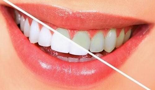 치아를 자연적으로 하얗게 하는 10가지 음식