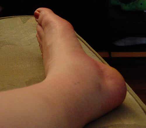 발목이 부었을 때 의심해야 할 점