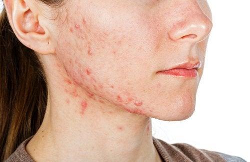 얼굴에 나타나는 7가지 영양 결핍 증상 여드름