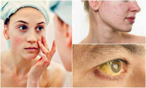 얼굴에 나타나는 7가지 영양 결핍 증상