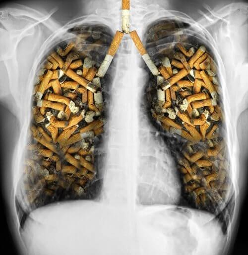 담배로 가득 찬 폐
