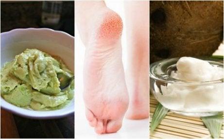 갈라진 발뒤꿈치를 위한 5가지 민간요법
