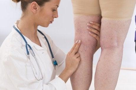 체액 저류 및 염증