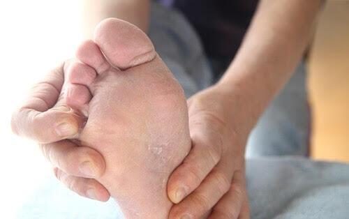 발 치료제