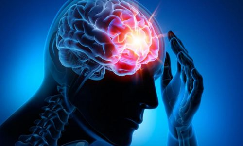 가장 흔한 뇌혈관 질환 4가지