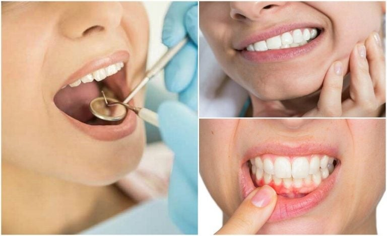 치아 염증을 알리는 7가지 증상들