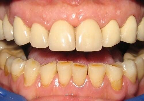 치아 염증으로 인한 붉은 잇몸