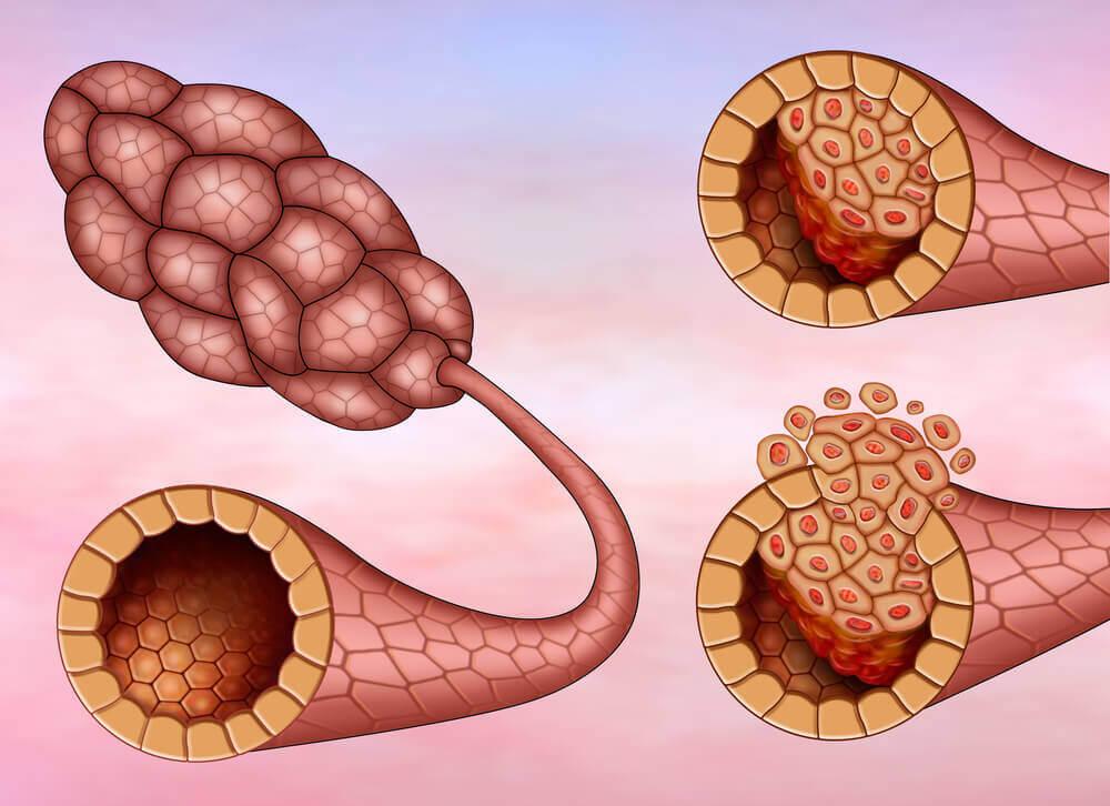 유방암의 종류