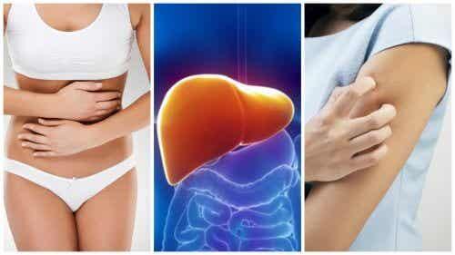 간에 독소가 쌓였을 때 나타나는 증상 8가지