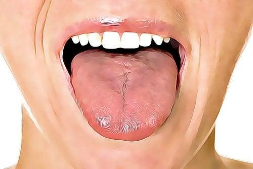 혀 궤양을 위한 홈 치료법 6가지