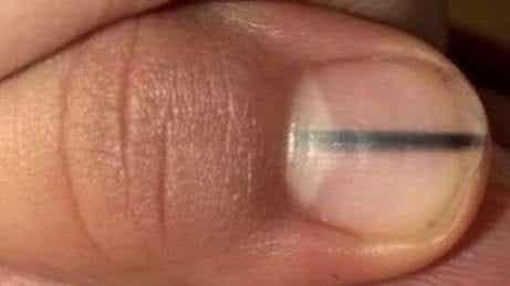 손톱의 검은 선은 암을 나타낼 수도 있다