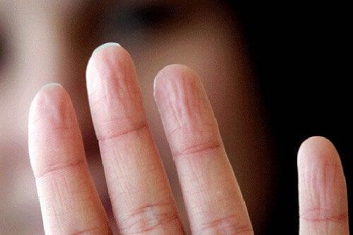 과도한 땀과 손의 건강