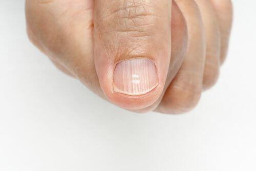 손톱 위에 생긴 선을 제거하는 방법