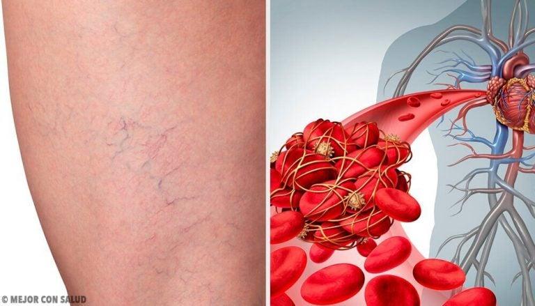 정맥염의 최고 홈메이드 치유법 3가지