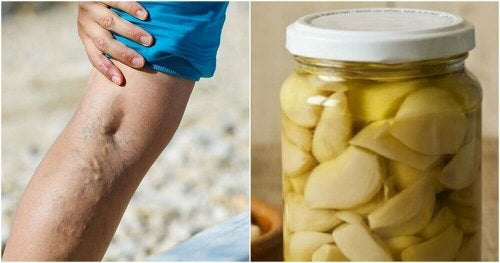 모세 혈관 확장증을 완화하는 마늘과 오렌지 치료법