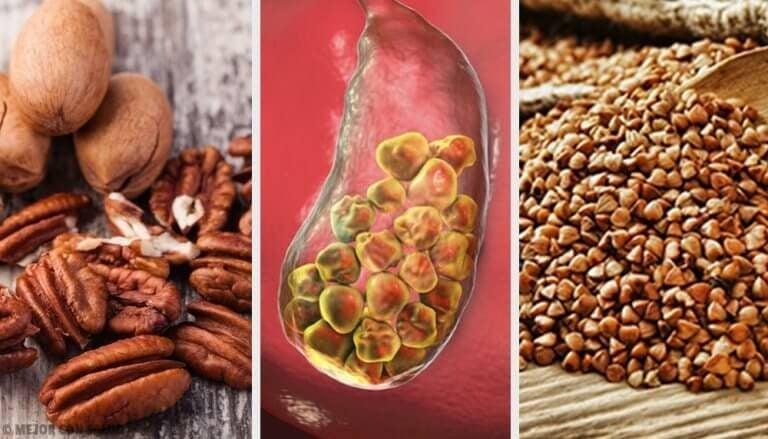 담석 제거에 도움이 되는 6가지 식품