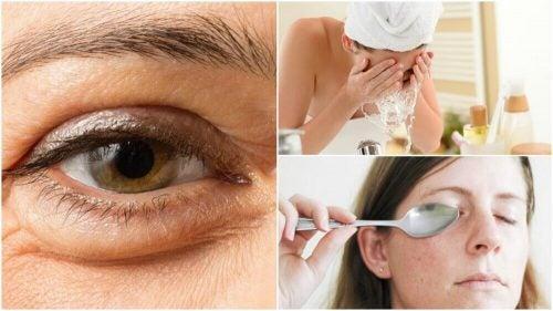 눈 밑 처진 살을 줄이는 자연요법 6가지