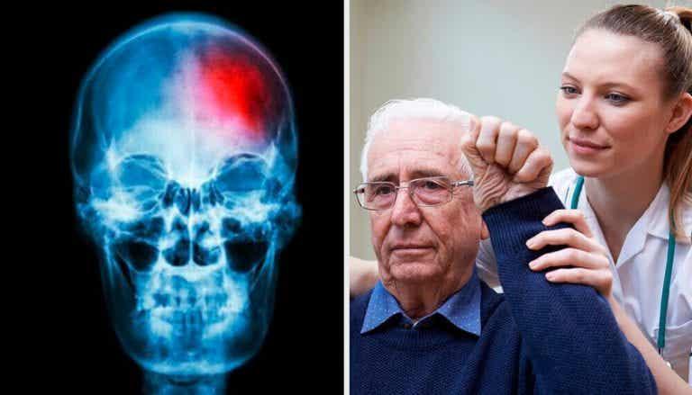 미니 뇌졸중은 무엇이며, 어떻게 발견할까?