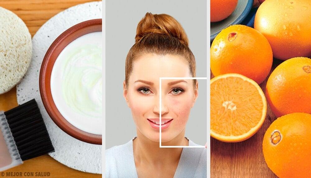 천연 재료로 피부 결점을 제거하는 방법