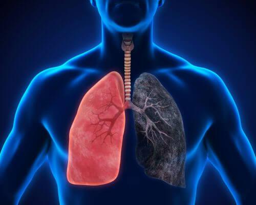 무시하면 안 되는 폐렴 증상 8가지