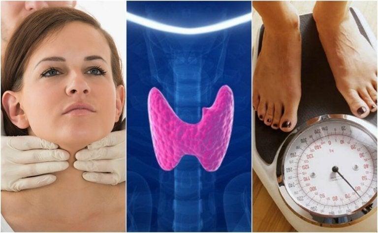 갑상선 기능 저하증으로 의심되는 징후 10가지