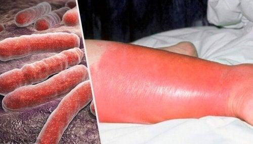 단독(Erysipelas)의 발생과 해결책