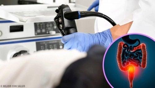 대장암을 유발하는 원인과 치료법