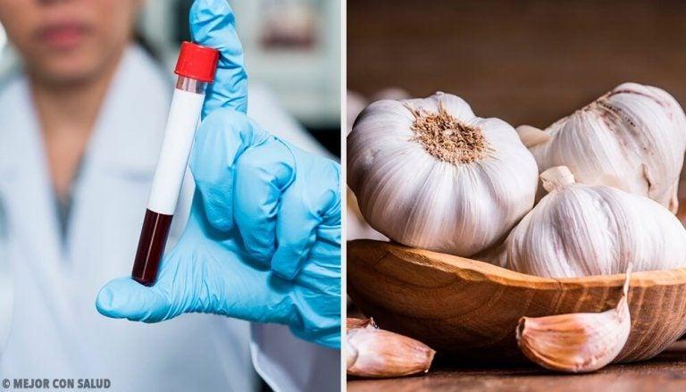 놀라운 마늘의 항응고 특성과 건강상 이점